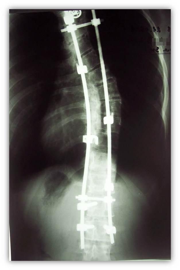 Обострение сколиоза грудного отдела