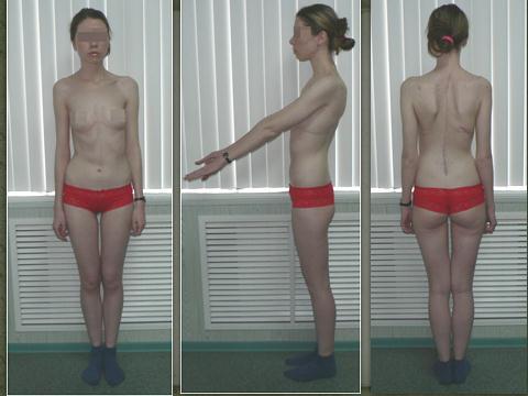 Лечебная гимнастика сколиоза позвоночника