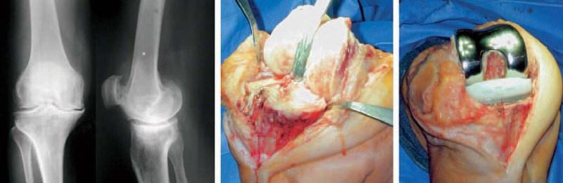 болезнь артроз сустава разрушение сустава