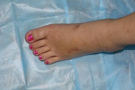 боковые косточки на ступнях ног